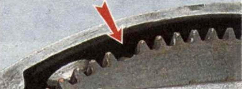 Поломка зуба